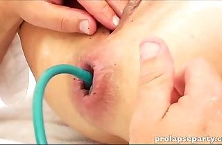 Anal prolapsing readily obtainable eradicate affect gynecologist